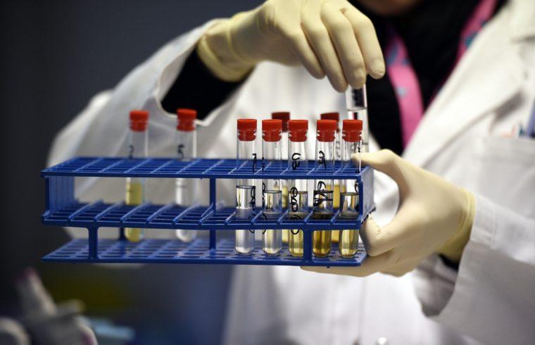 Doppingvizsgálatra készítenek elő sportolóktól levett vizeletmintákat egy franciaországi doppinglaborban 2015-ben #moszkvater
